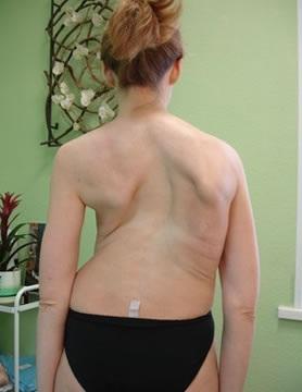 Кифотическая деформация шейного отдела позвоночника лечение