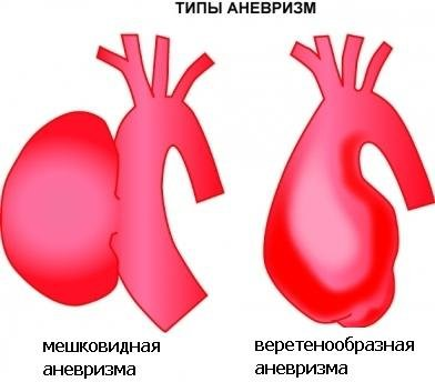 1332915431_bryshnaya-aorta3