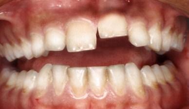 Вывихи зубов у детей фото