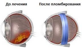 otsloyka-setchatki-lechenie