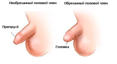 Видео обрезания пениса