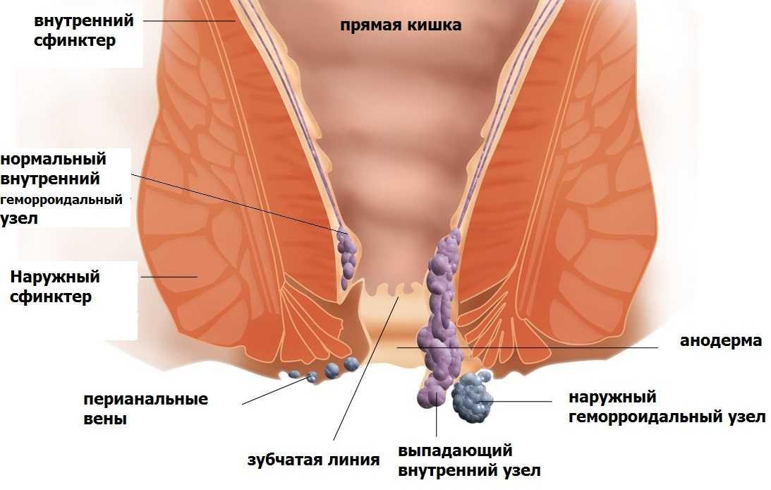 Очищение крови лазером ВЛОК  показания ограничения