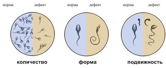 muzhskoe-besplodie-diagnostika