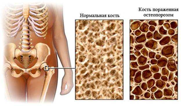 Медикаментозное лечение остеопороза