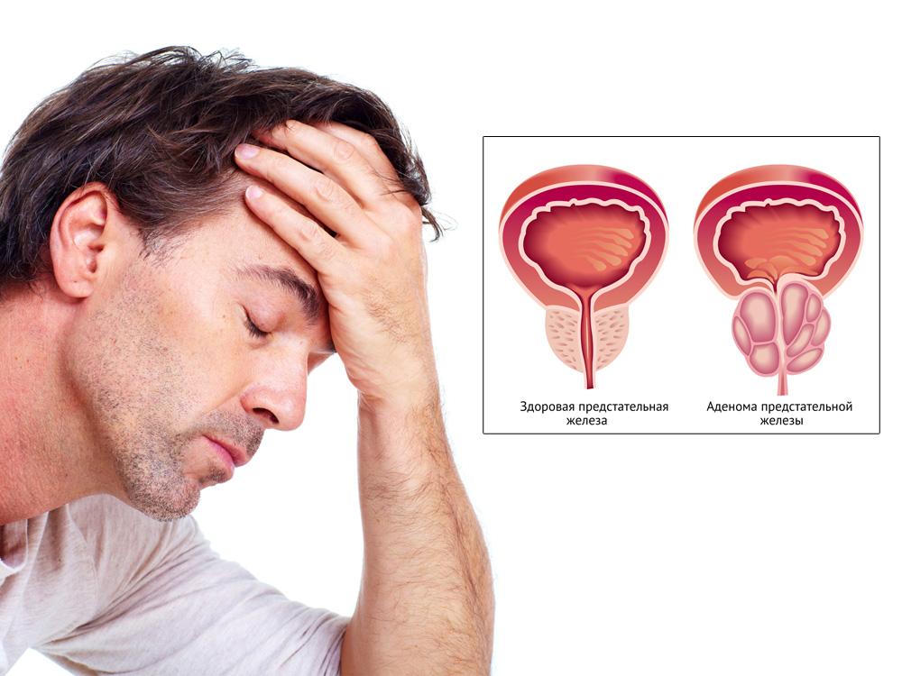 Прогноз при 3 стадии рака простаты