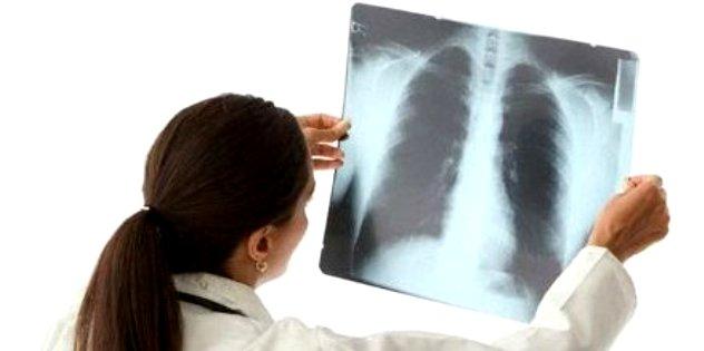 Diagnostika-raka-legkih