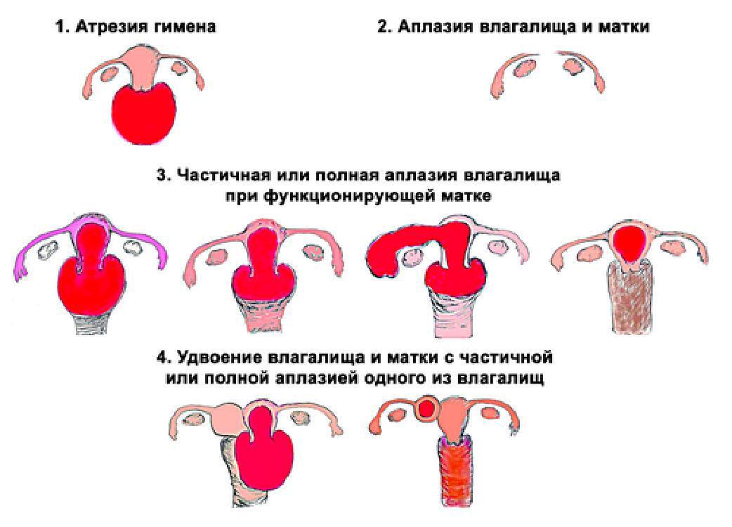 фото женских половых органов разновидность