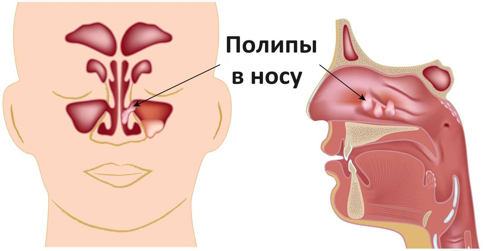 бронхиальная астма и полипы в носу