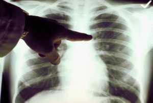 Рентген рака легкого