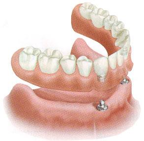 s_emnoe_protezirovanie_na_implantah