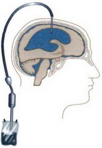 shuntirovanie-golovnogo-mozga