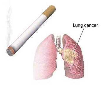 рак легких1
