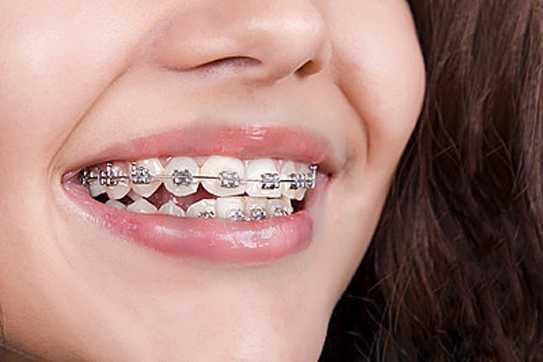 Основные этапы ортодонтического лечения брекетами