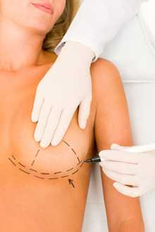 Операция по замене грудных имплантов