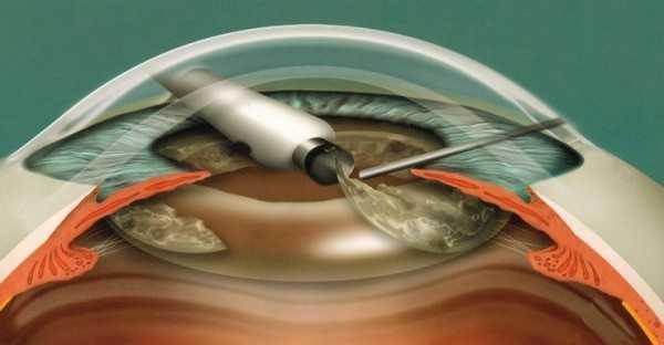 Ультразвуковая факоэмульсификация катаракты