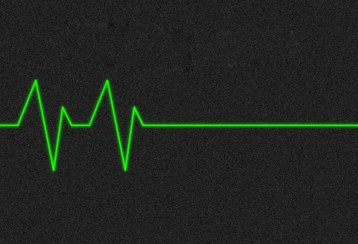Остановка Сердца фото