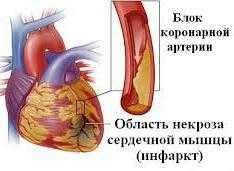 Мкб атеросклероз аорты и коронарных артерий