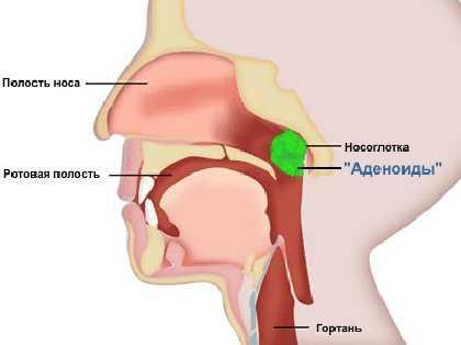 Причины возникновения аденоидов