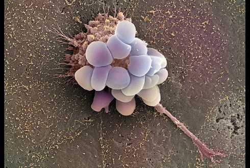 Рак яичников - симптомы, стадии, диагностика
