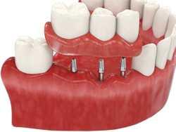 Что такое базальная имплантация зубов