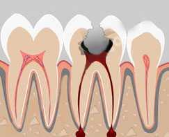 Депульпирование - последствия удаления пульпы зуба