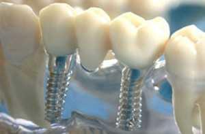 Имплантация или протезирования зубов – все за и против