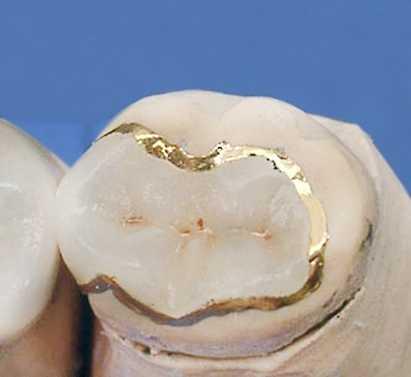 Что такое зубные вкладки – виды и их особенности