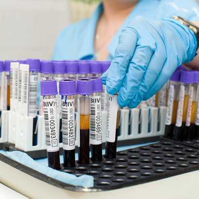 холестерин билирубин в крови норма