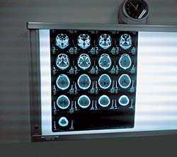 МРТ – преимущества магнитно-резонансной томографии