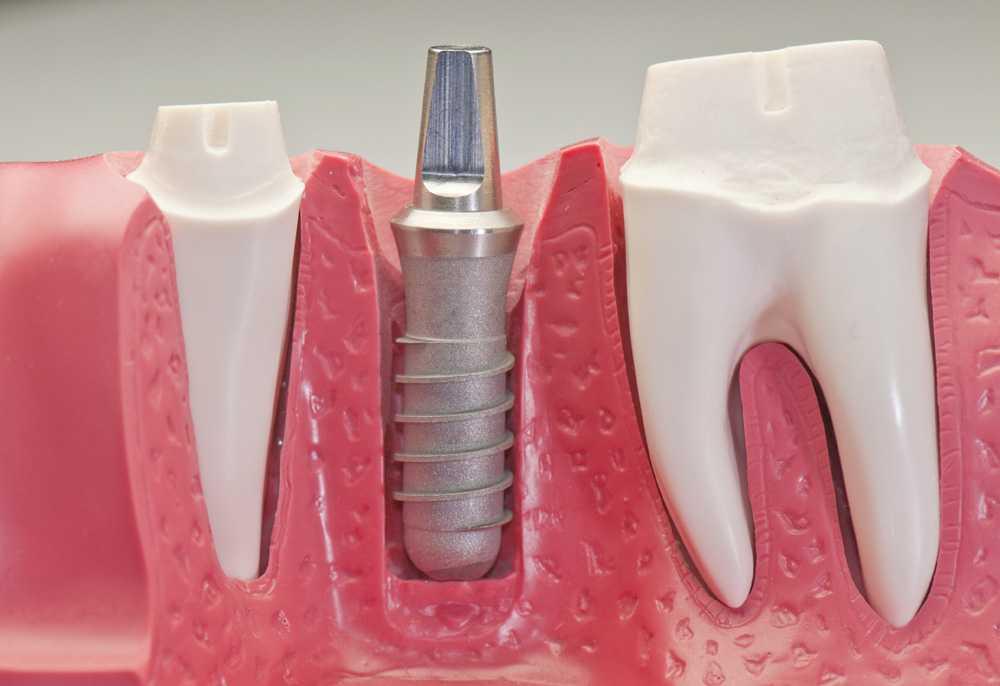 Имплантант или протезирование