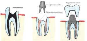Зубные вставки