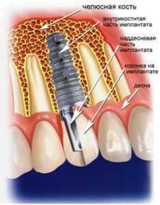Имплантация зубов после удаления
