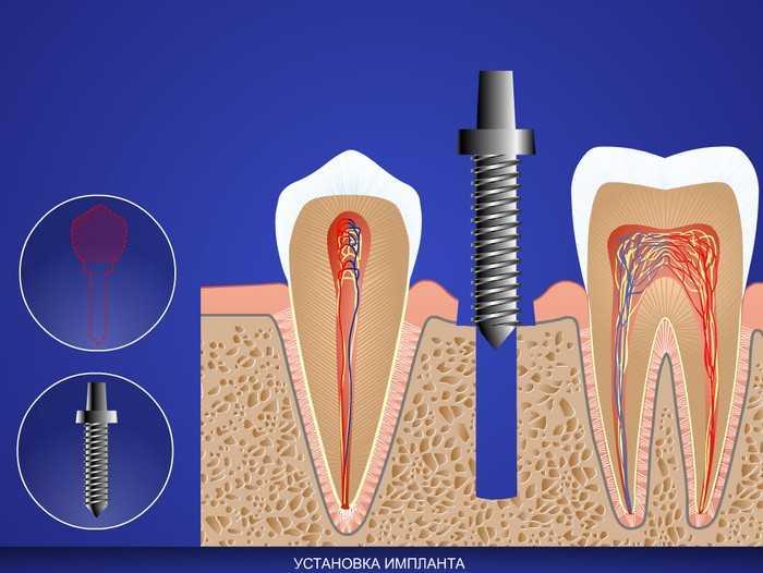 Transdermal implant