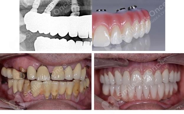 Фото базальной имплантации зубов