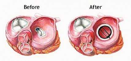 При протезировании клапанов сердца диета