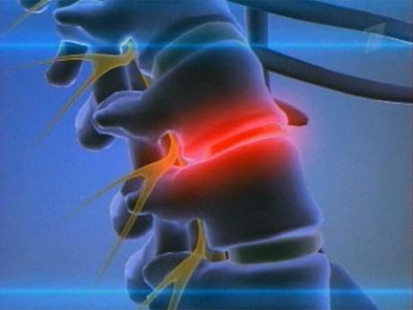 Миозит поясничных мышц. лечение