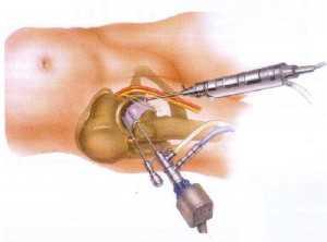 Лечение артроза - операция
