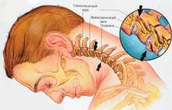 Шейный остеохондроз – истинные причины возникновения и профилактика