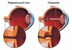 Формы глаукомы