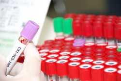 Какой анализ на гепатит точнее показывает – клинический или ПЦР?
