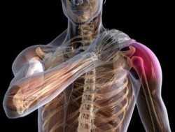 Симптомы и признаки вывиха плечевого сустава
