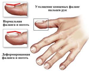 Барабанные палочки - деформация пальцев