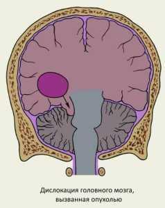 Церебральная дислокация
