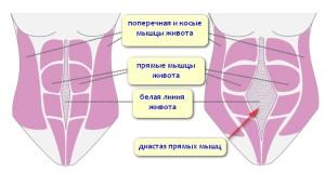 Мышцы брюшины