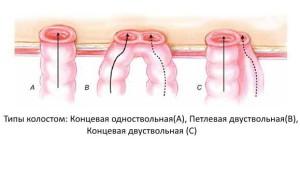 Типы трансверзостом