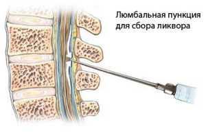 Ввод иглы при люмбальной пункции
