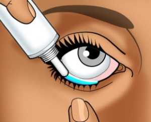 Закладывание в глаз мази
