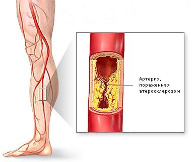 Облитерирующий эндартериит - какие симптомы важно не пропустить и ...