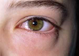 Когда отеки утром под глазами признак заболевания?