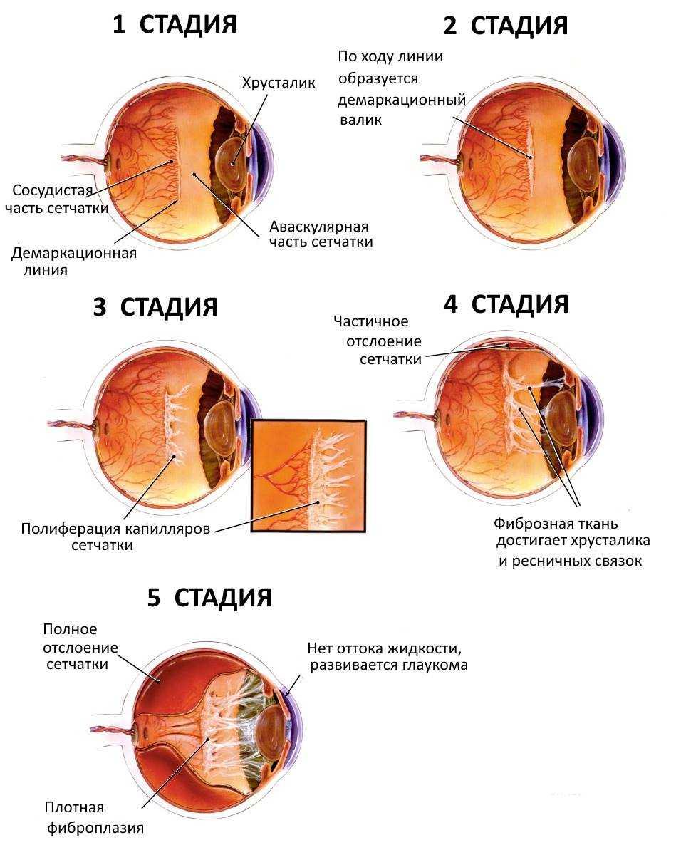 Фиброплазия Ретролентальная фото